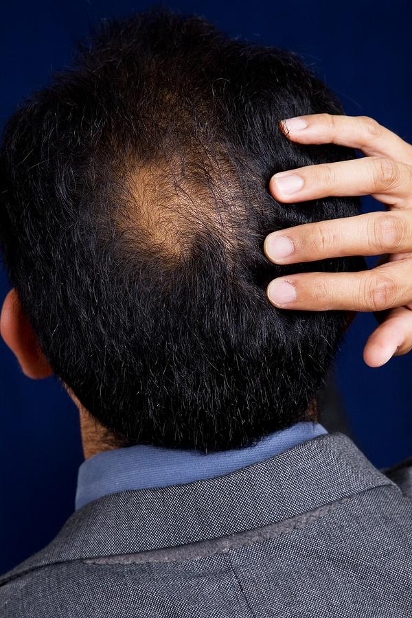 bald-spot-man.jpg