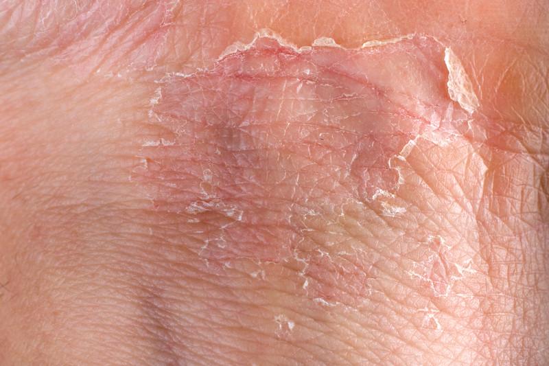 Gelmicin para Eczema y Psoriasis
