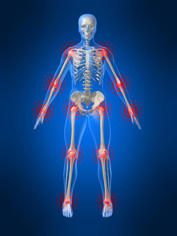 Dolor de Artritis en Articulaciones y Coyonturas