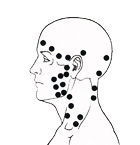 Trigger Points Head
