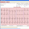 CardeaScreen Handheld ECG System