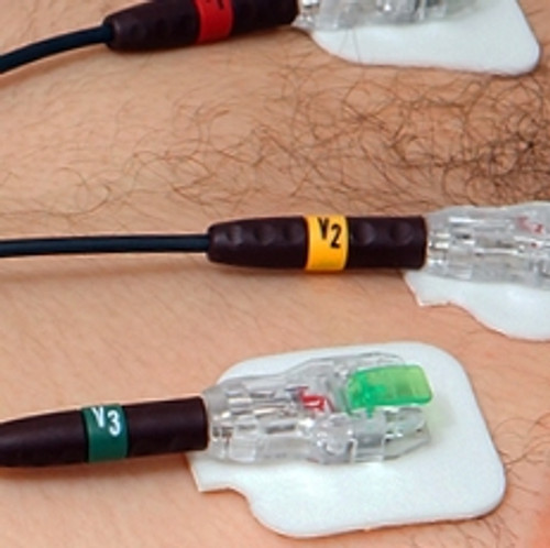 CardeaScreen Clip / Snap Connectors (set of 10)