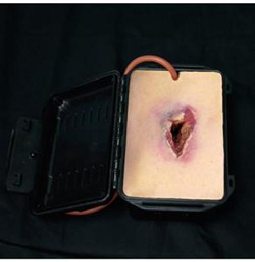 Shrapnel Wound in a Box