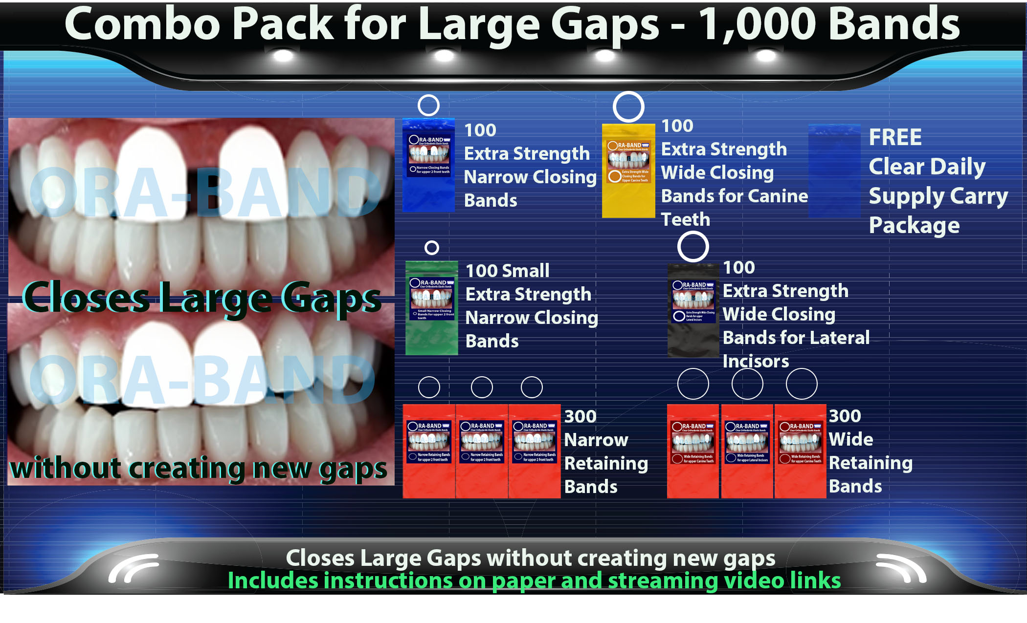 ORA-BAND 1,000 Band Combo Pack for  Large Gaps between your 2 front teeth