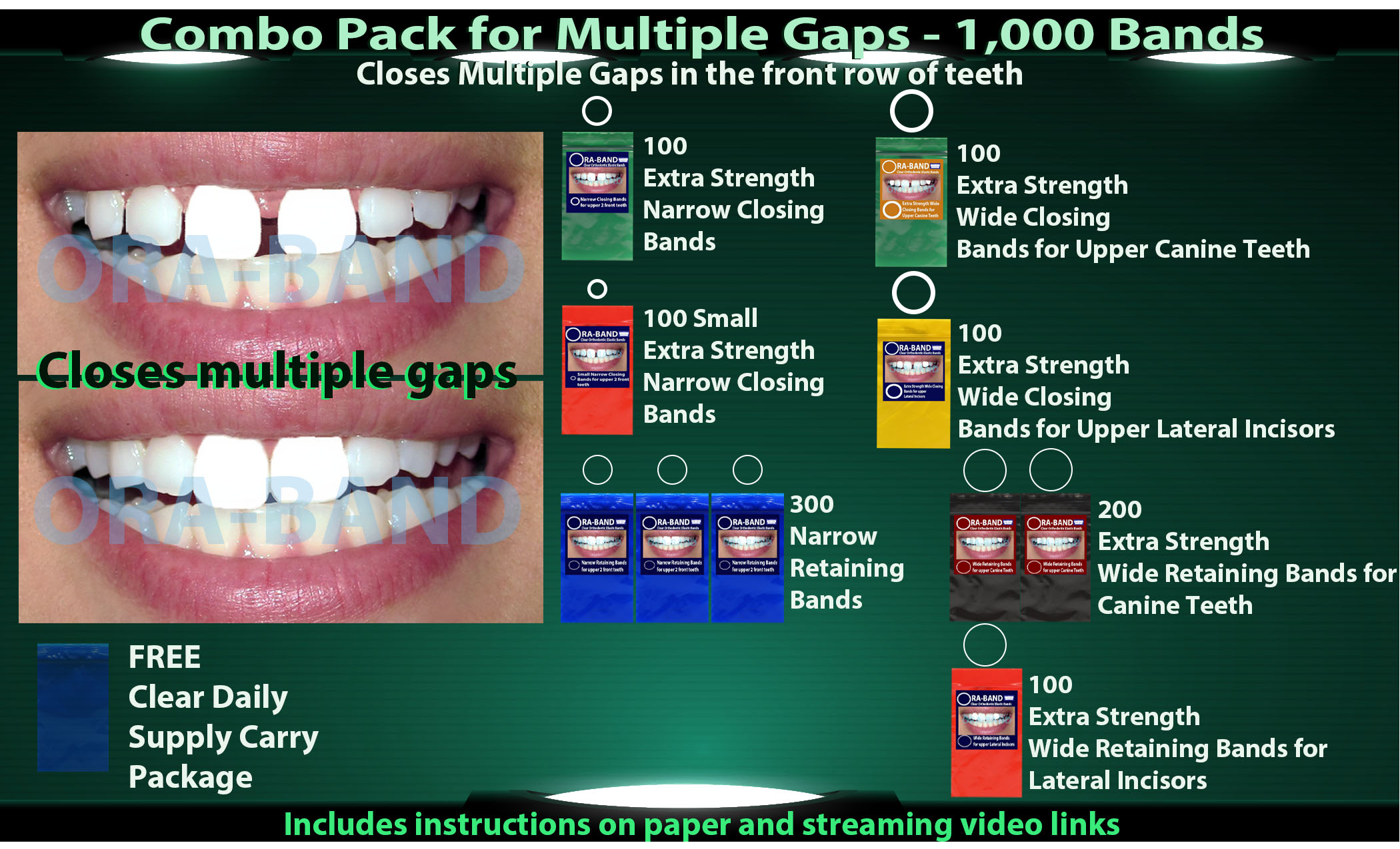 ORA-BAND 1,000 Band Combo Pack for Multiple Gaps in your front row of teeth