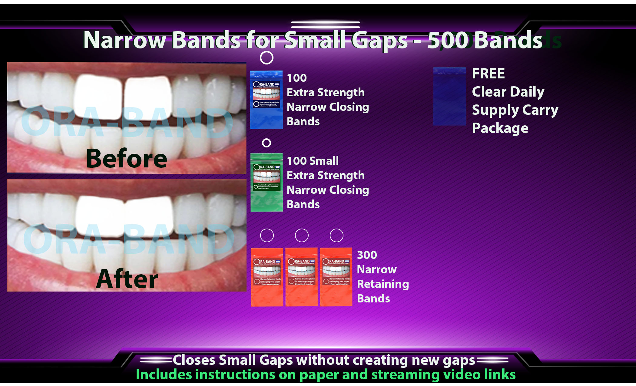 ORA-BAND 500 Band Narrow Bands Package for  Small Gaps between your 2 front teeth
