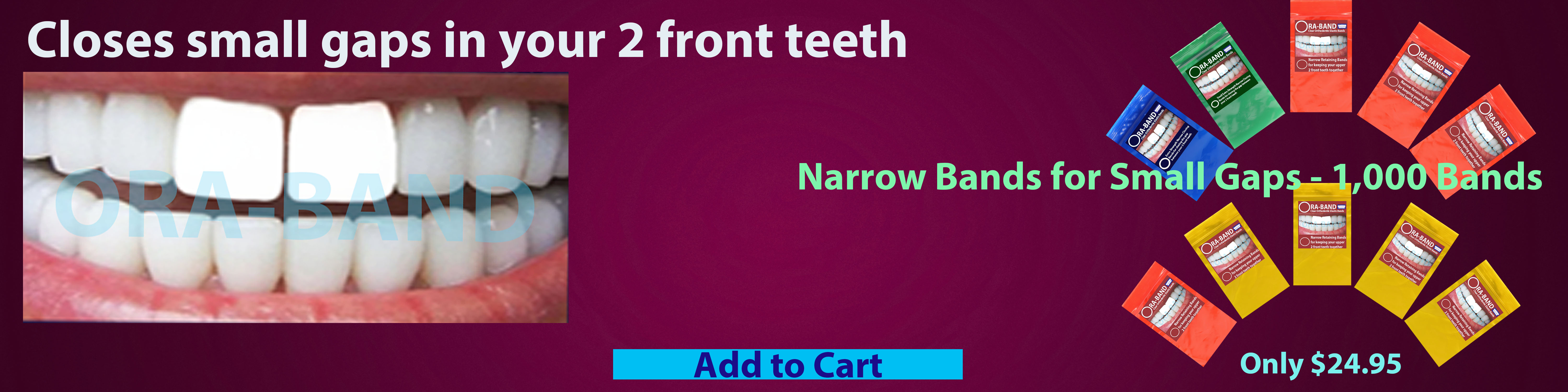 ORA-BAND 1,000 Band Narrow Bands Package for  Small Gaps between your 2 front teeth
