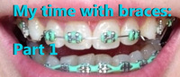 MY TIME WITH BRACES: PART 1