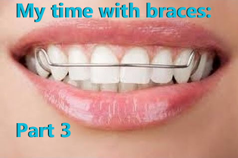 My time with braces: Part 3