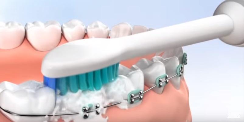 Chăm sóc răng chỉnh hình
