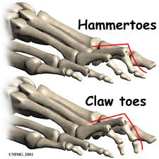 Hammer Or Claw Toe Problem