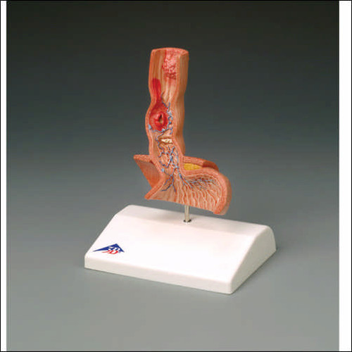 Esophagus Anatomical Model