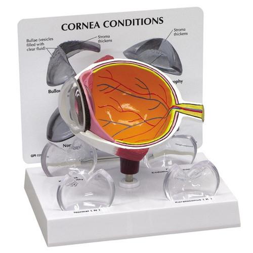 Cornea Eye Model