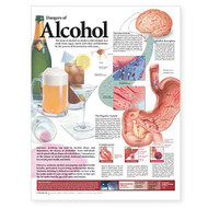 Dangers of Alcohol Anatomical Chart 2nd Edition