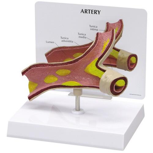 Artery Model