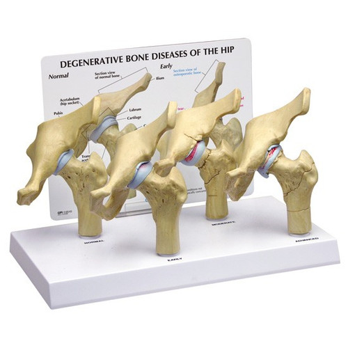 Arthritic Hip ,4-Stage Model