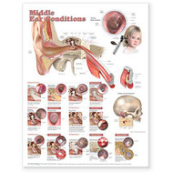 Middle Ear Conditions Anatomy Poster