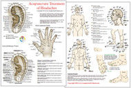 Acupuncture/Acupressure Treatment of Headaches Chart