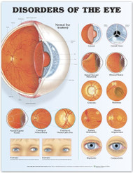 Disorders of the Eye 2nd Edition Anatomical Chart