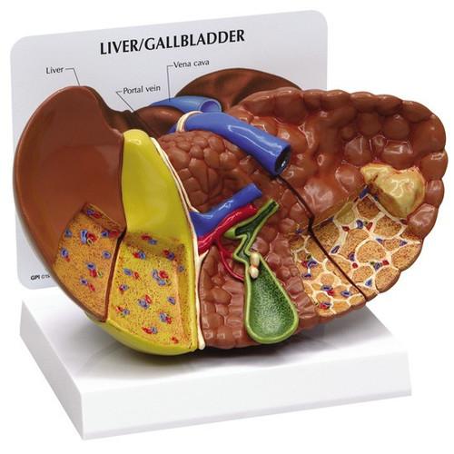 Liver Model