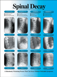 Spinal Decay Chiropractic poster