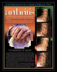 Arthritis poster