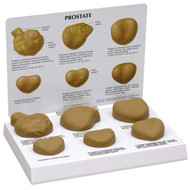 Prostate Model