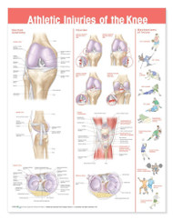 Athletic Injuries of the Knee Poster