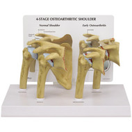 Shoulder Osteoarthritis Anatomical Model
