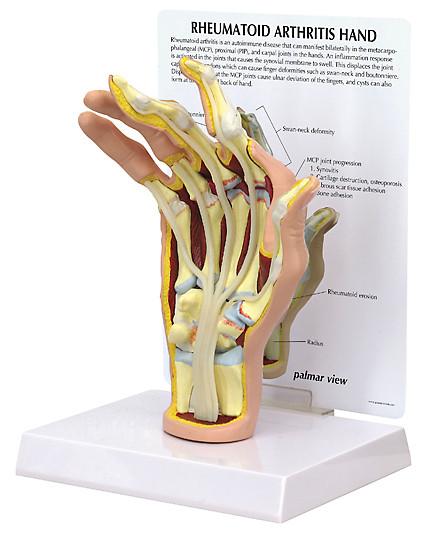 Hanf Rheumatoid Arthritis Anatomical Model