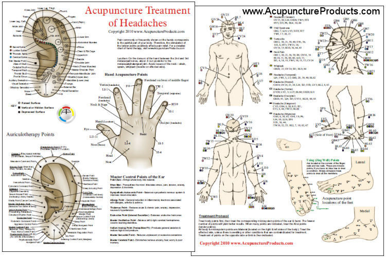 Acupuncture treatment of headaches chart clinical charts and