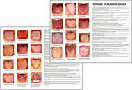 Tongue Diagnosis Chart