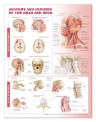 Head Injuries Poster