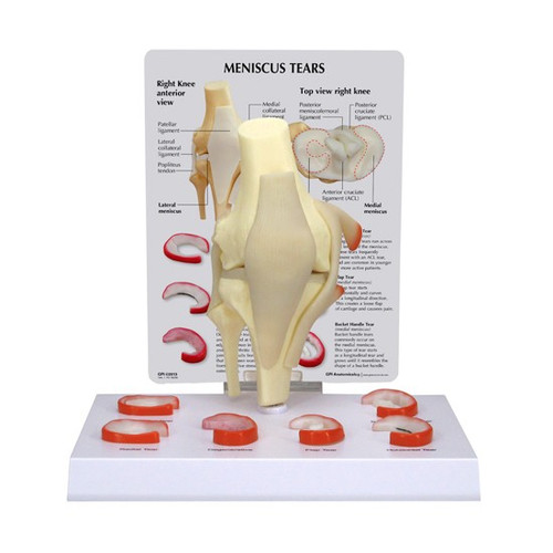 Knee Anatomical Meniscus Tear Model