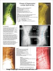 Lumbar Spinal Degeneration Poster