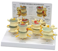 Four Stage Vertebrae Model and Disc