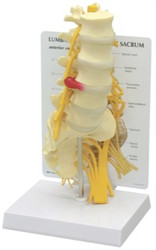 Lumbar Vertebrae Model with Sacrum 5-Pc.