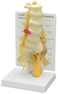 Lumbar Vertebrae Model with Sacrum 5-Pc.