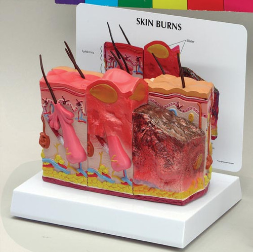 Skin Burn & Normal Skin Anatomical Model