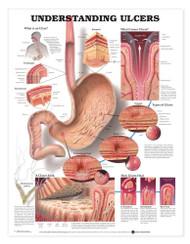Understanding Ulcers Chart