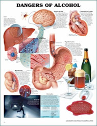 The Dangers of Alcohol Anatomical Poster