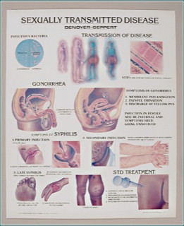 sexually transmitted diseases anatomical poster clinical