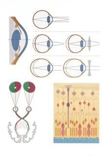 Eye Chart II, Pathology
