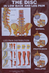 Disc and Vertebrae Anatomical Poster