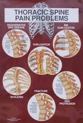 Thoracic Spine Diagnosis Anatomical Chart