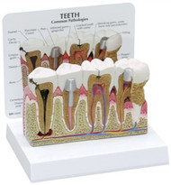 Teeth Dental Model