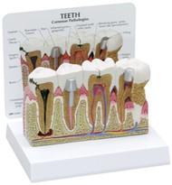 Teeth Dental Model