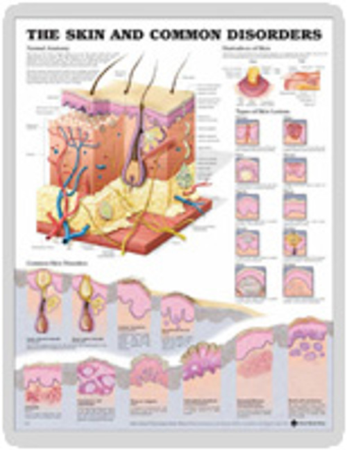"""THE SKIN AND COMMON DISORDERS CHART 20"""" W X 26"""" H, LAMINATED"""