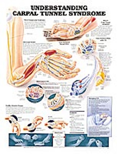 """UNDERSTANDING CARPAL TUNNEL SYNDROME CHART 20"""" W X 26"""" H, STYRENE PLASTIC"""