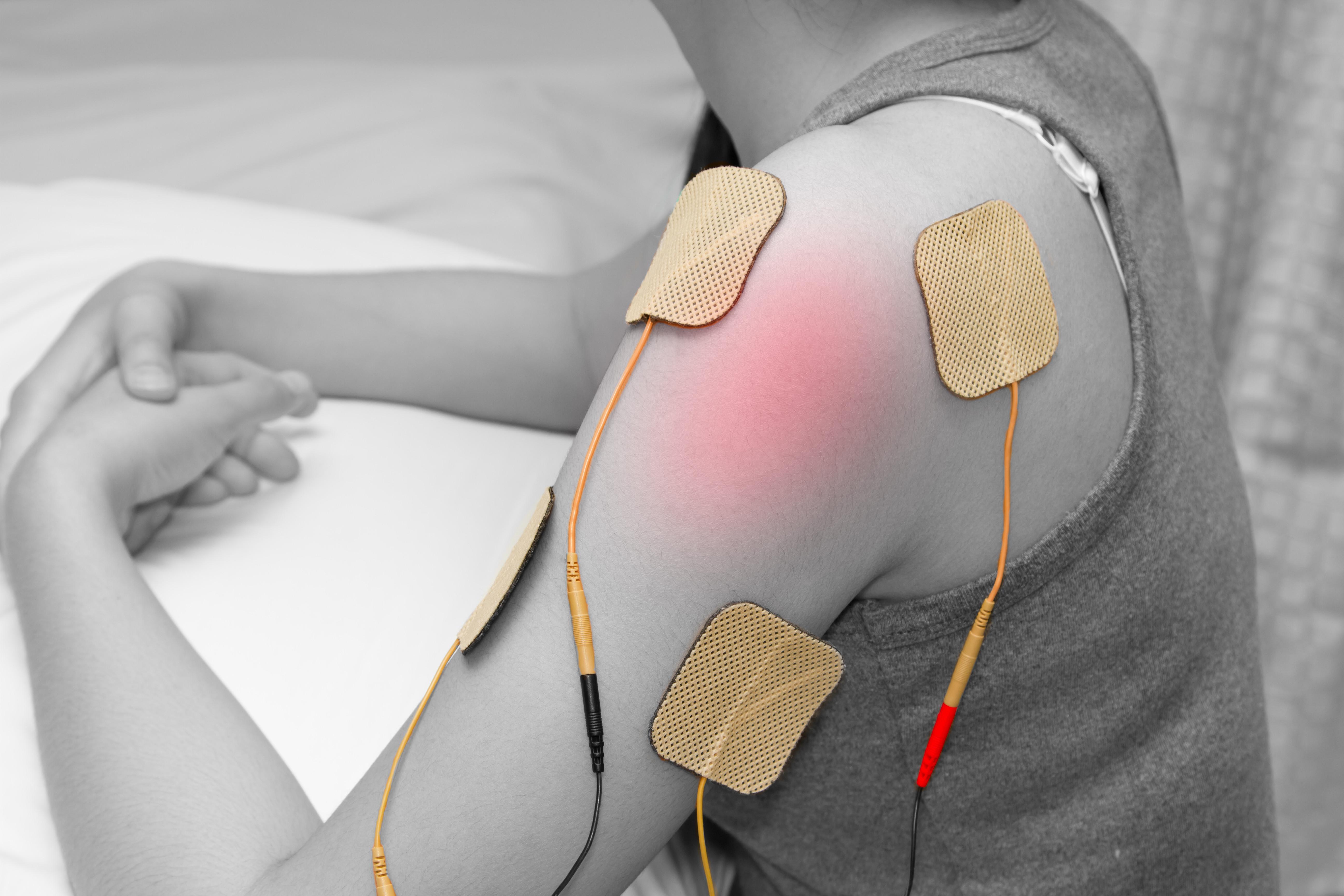 Electrodes - On Sale